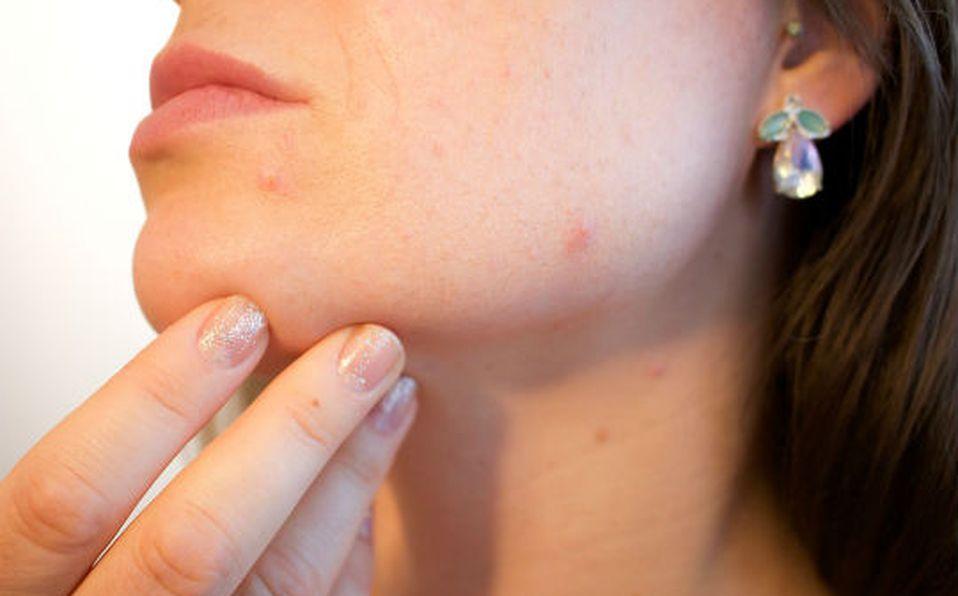 Remedio casero para el acné