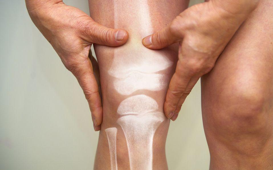 La osteoporosis no presenta síntomas hasta que se llega a una condición vulnerable (Getty).