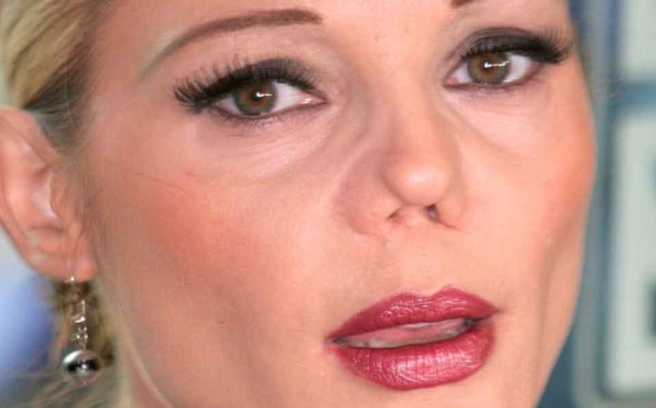 ¿Qué le pasó a la nariz de Carmen Campuzano?