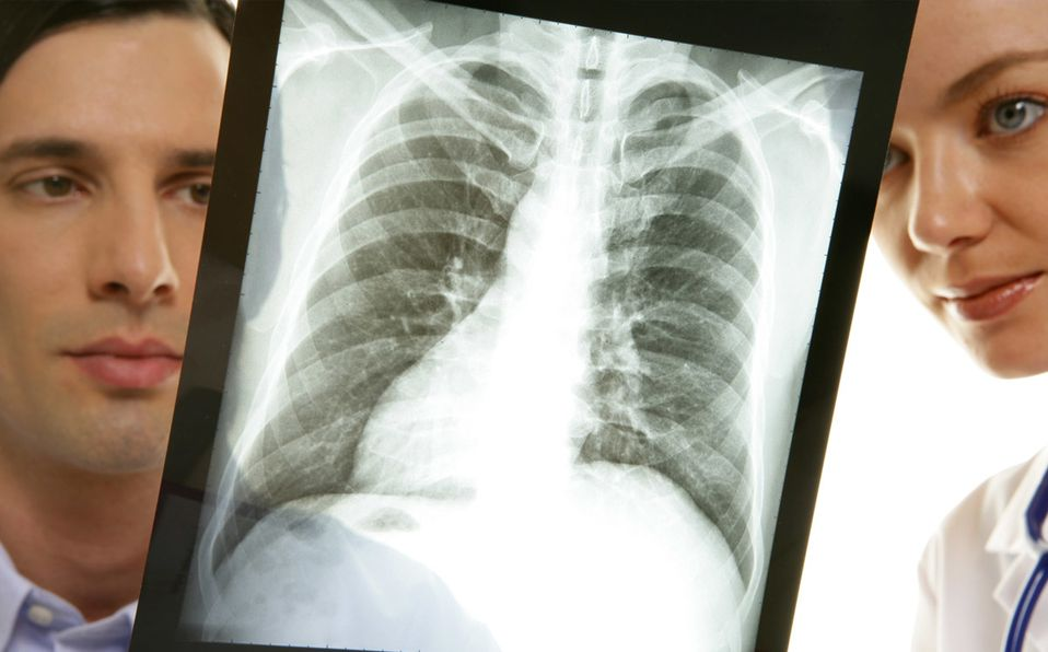 Los pulmones son algunos de los órganos más afectados por el covid-19 (Getty).