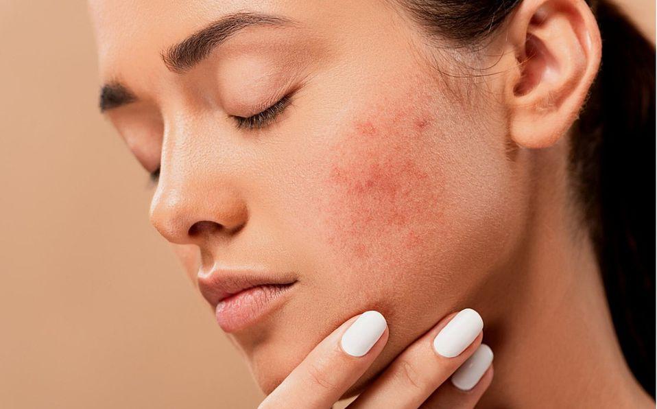 Covid-19. Señales en la piel de que tienes coronavirus