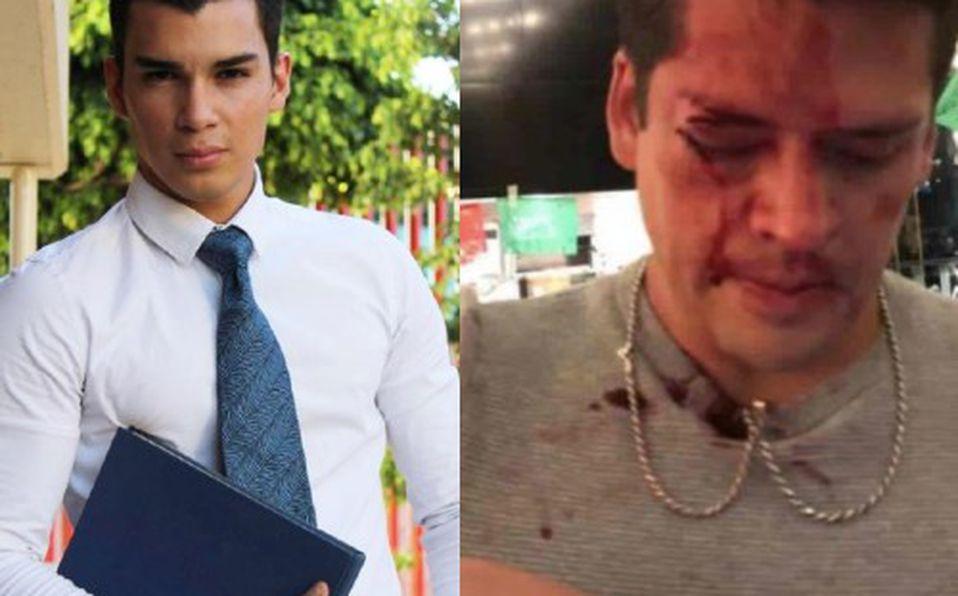 Acusan a Wapayoso de golpear a primo de Eduardo Capetillo Jr